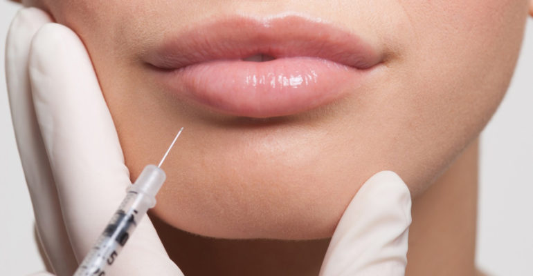 The art and science of dermal fillers of hyaluronic acid