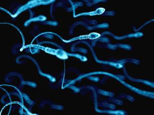 Ashwagandha (Withania somnifera) nella gestione dell'infertilità maschile